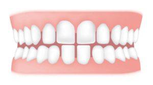 تصویر دندان 1