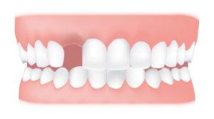 تصویر دندان 6