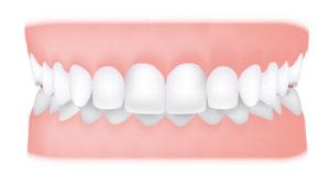 تصویر دندان 4