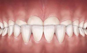 تصویر مال اکلوژن دندانها